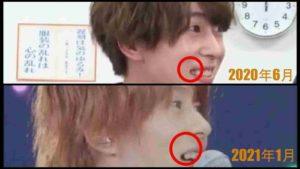 末澤誠也の右上の奥歯が無いかどうか画像比較