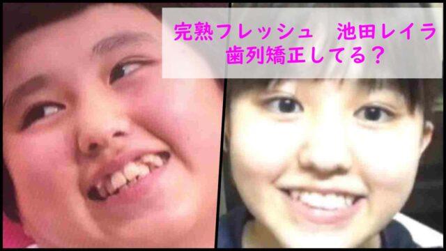 完熟フレッシュ池田レイラは歯列矯正してる?歯並びが悪いのか変化を比較!