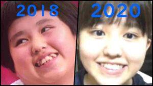 池田レイラの歯並びを時系列比較
