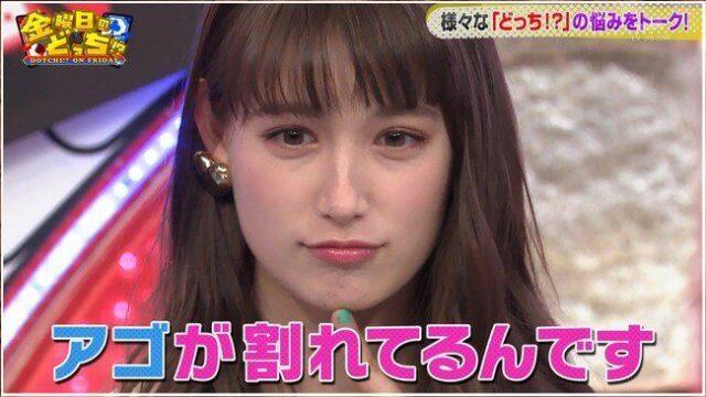 【画像】トラウデン直美の顎割れが残念!ザキヤマ並に割れている!?